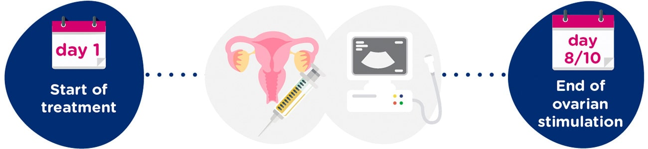 Ovarian stimulation + gynaecological tests